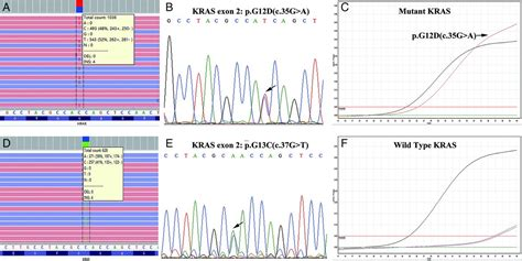 Validation of targeted next-generation sequencing for RAS