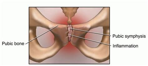 Osteitis Pubis - Presentation and Treatment | Bone and Spine