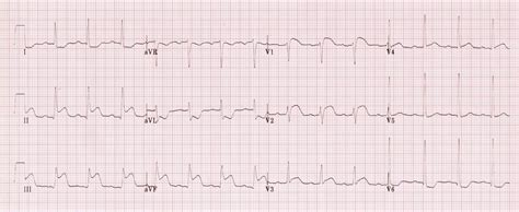 ROSC, hypotension and an ECG exigency • LITFL