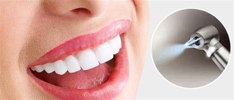 AquaCare Stain Removal - Deans Dental Care