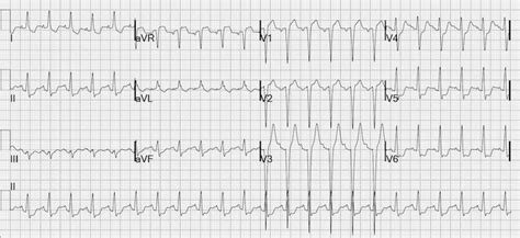 LMCA occlusion: ST Elevation in aVR • LITFL • ECG Library