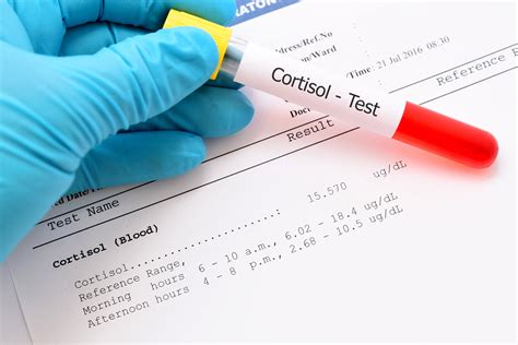 Cortisol Testing | Test Your Cortisol Levels (Blood, Urine
