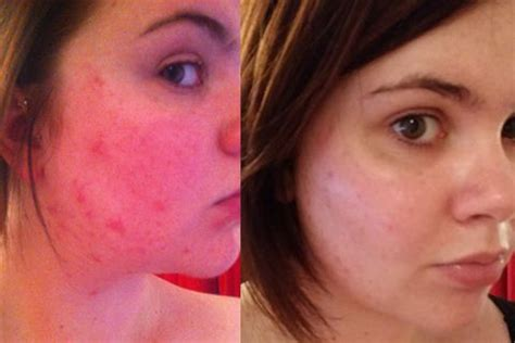 La Roche-Posay Effaclar Duo+ :: before and after pictures